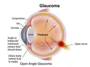 types of glaucoma kansas city eye clinic